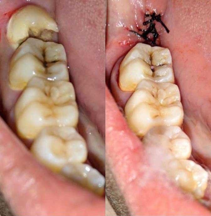 Удаление зуба мудрости пример 2