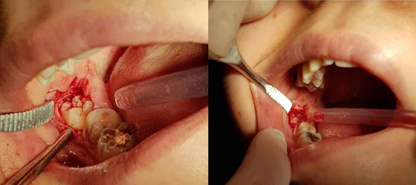 Удаление зуба мудрости пример 4