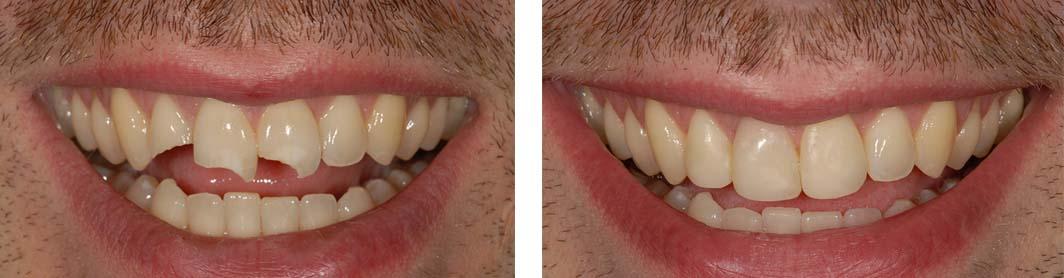 Реставрация зубов пример 2
