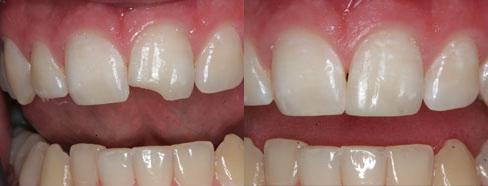 Реставрация зубов пример 3