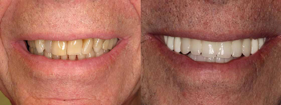 Реставрация зубов пример 4
