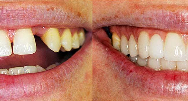 Реставрация зубов пример 5