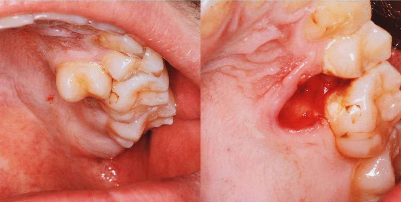 Удаление сложного зуба пример 1