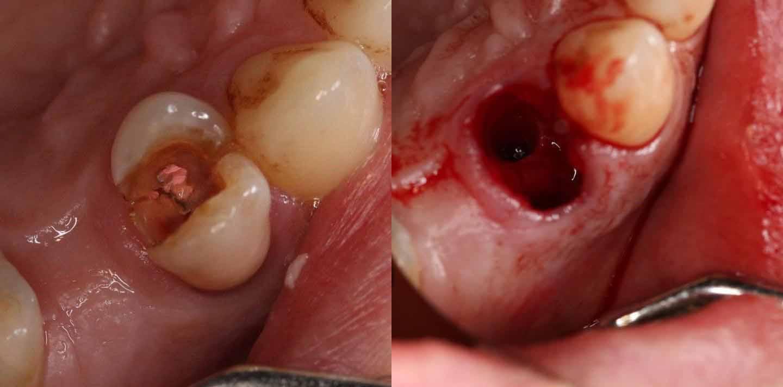 Удаление сложного зуба пример 3