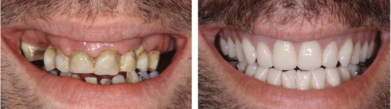 Зубные протезы пример 1