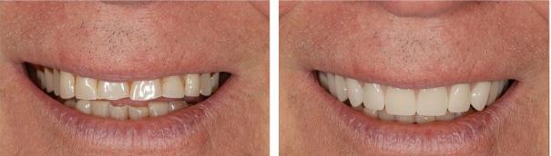 Зубные протезы пример 2