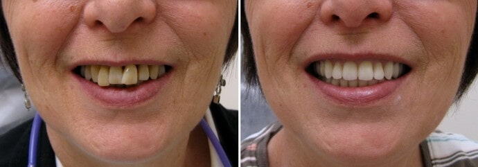 Зубные протезы пример 4