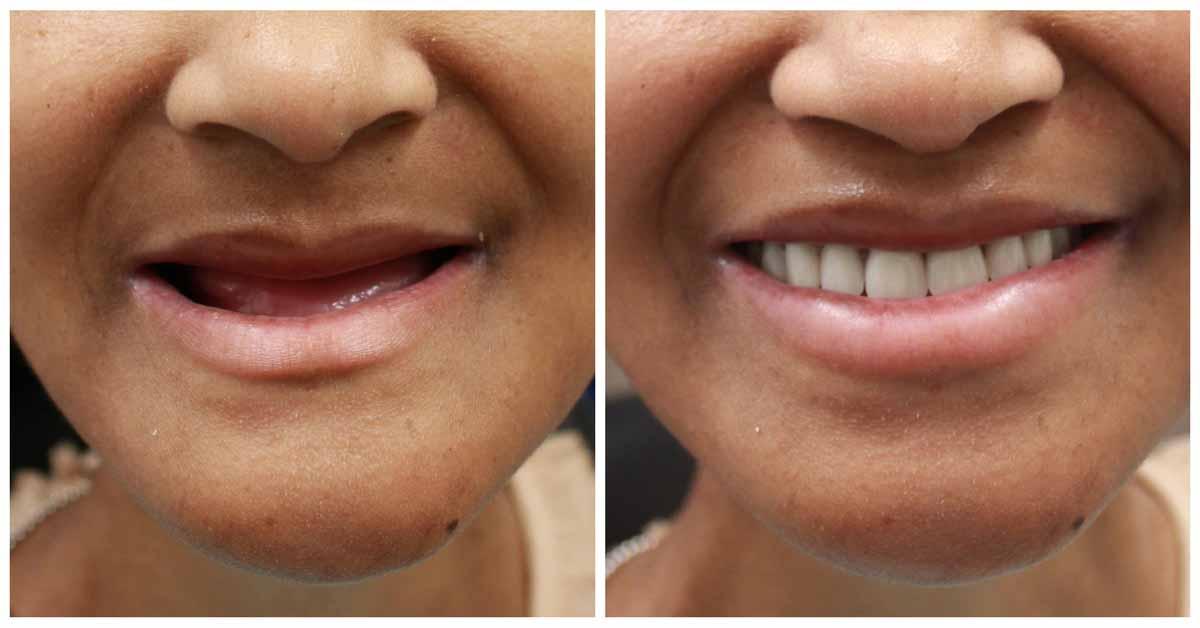 Зубные протезы пример 5