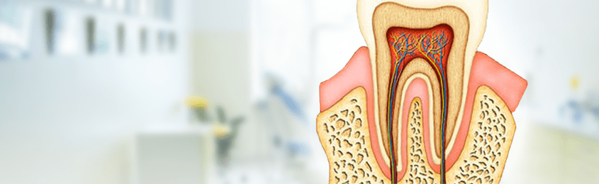 Удаление нерва зуба - фото 2
