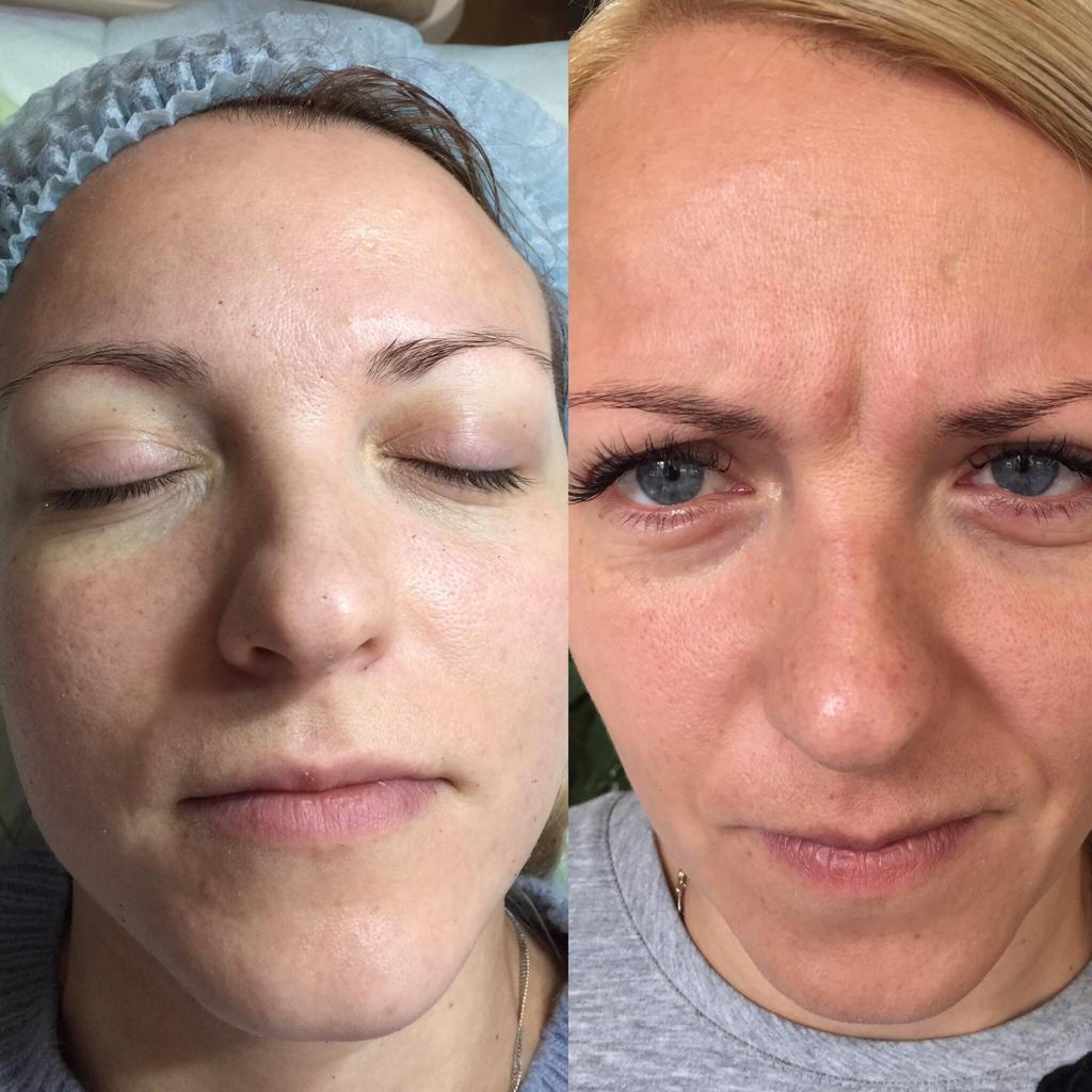 До и после процедуры ботокса