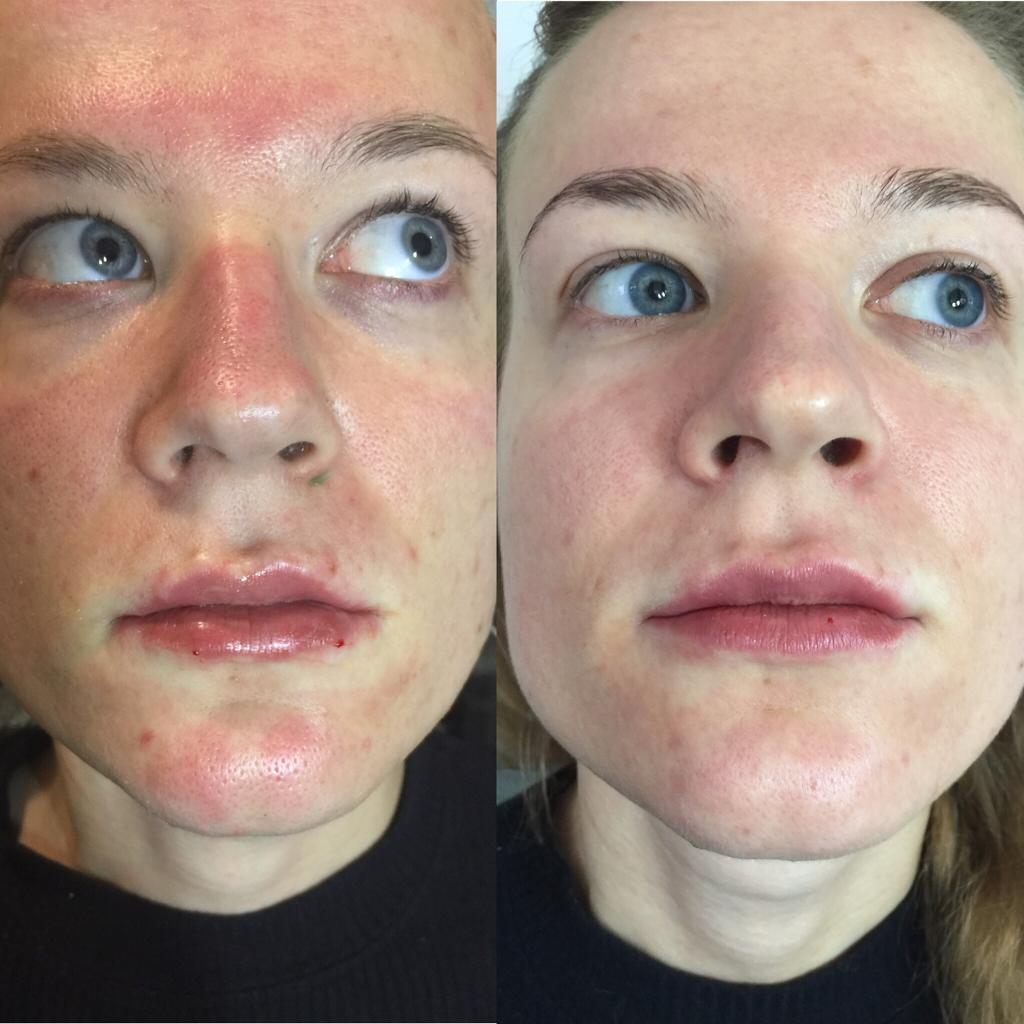 Чистка лица - пример арботы